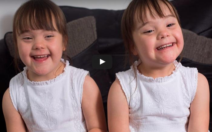 Gemenele cu sindromul Down care iti vor topi inima! Sansele erau de 1 la 1 milion sa se intample asta! Arata ca 2 fetite perfect normale VIDEO