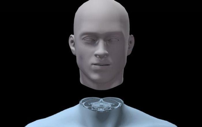 A fost realizat primul transplant de cap uman din istorie! Medicul care l-a efectuat sustine ca e un succes