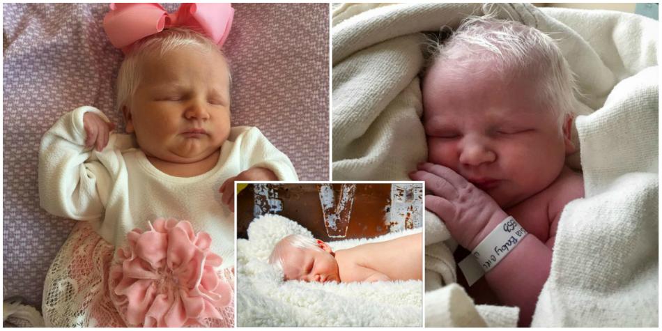Fetita asta e unica in lume si s-a nascut cu par alb