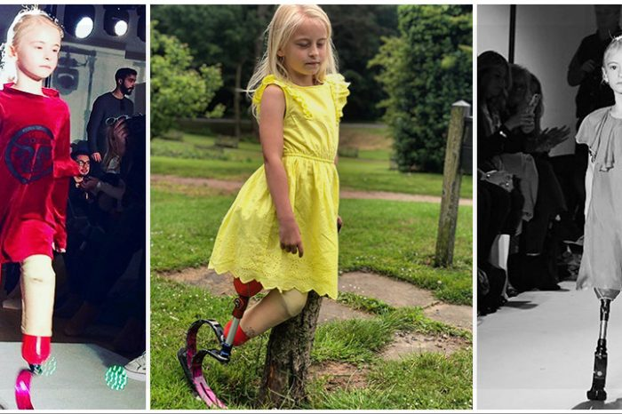 Model la doar 7 ani, cu ambele picioare amputate. O poveste de viata care te va inspira