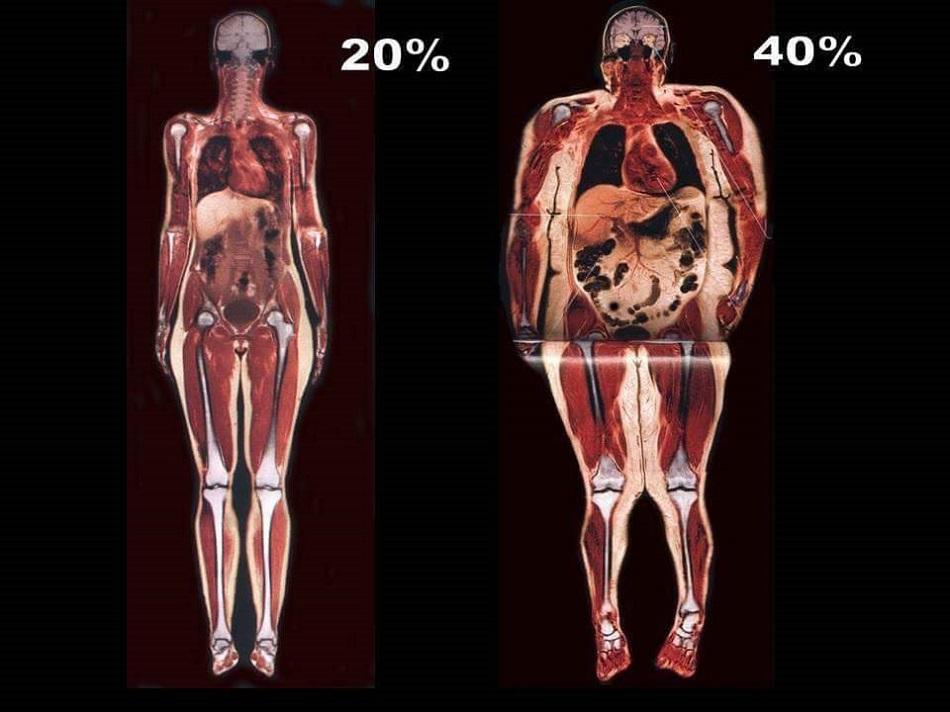 Dieta pentru reducerea grasimii viscerale