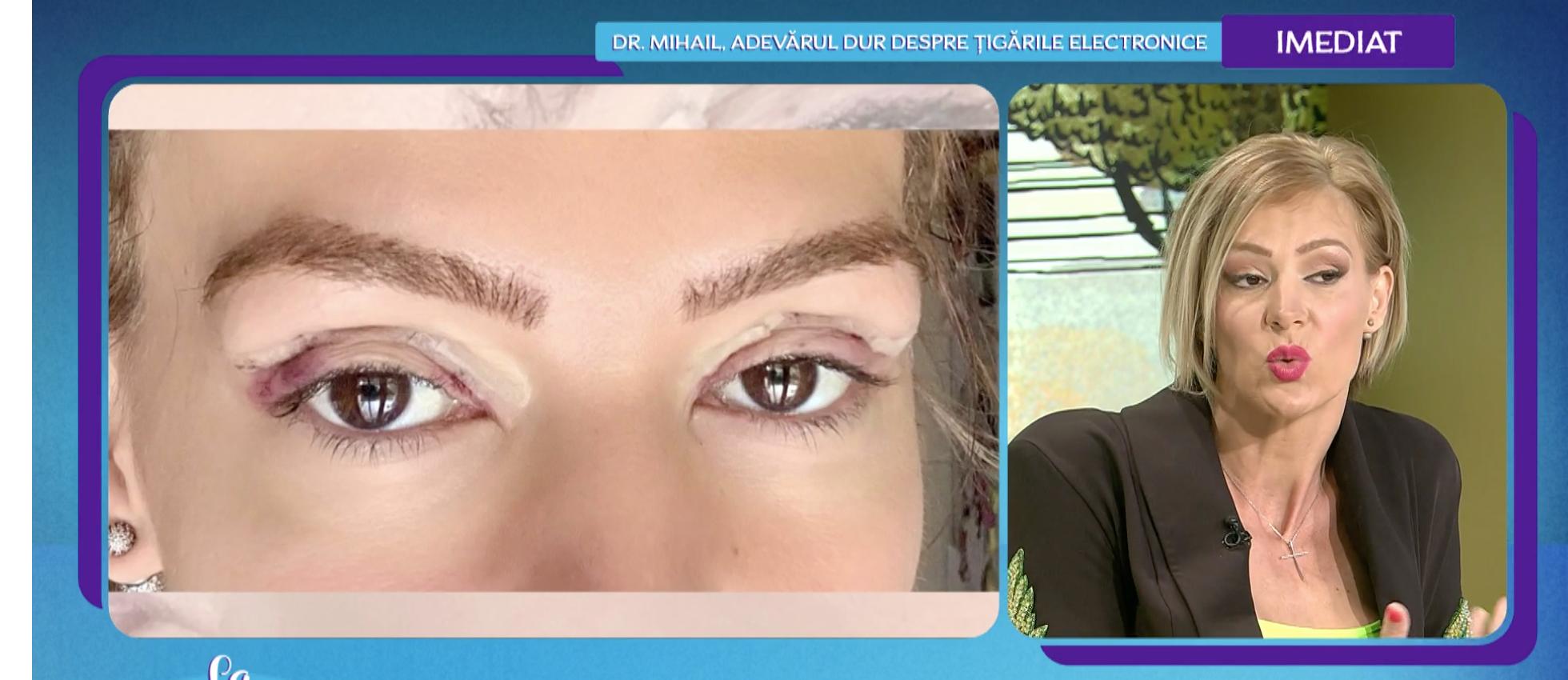 Roxana Ciuhulescu operatie la pleoape 3