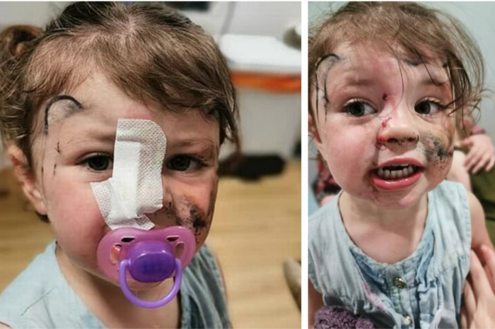 Groaznic! Fetita de 2 ani muscata de fata de un caine! Era sa-si piarda un ochi dar a scapat ca prin minune! Cum arata acum copila?!